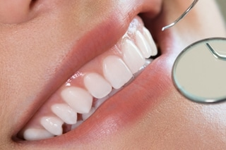 Periodontal Therapy & Gum Grafting