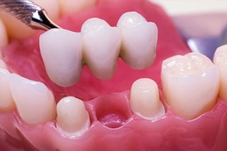 Crowns, Bridges & Veneers