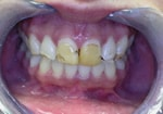 Teeth Before Veneer
