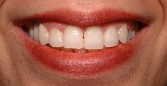 Teeth After Veneer