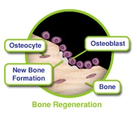 Bone Grafting Regeneration