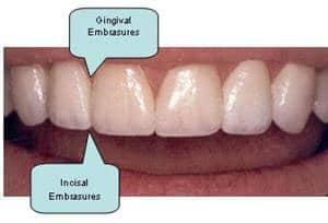 Gums & Embrasur
