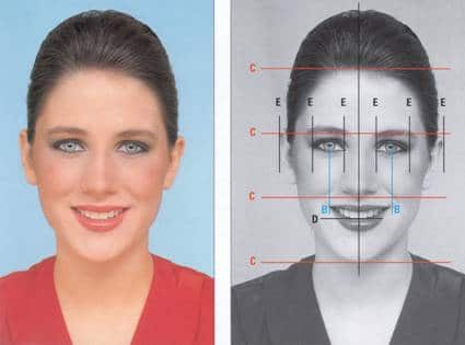 Before and after Smile Designing
