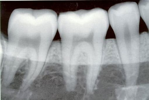 Teeth X-ray photo