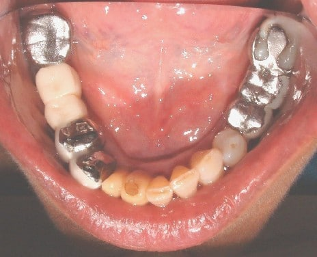 Dental Implant Process Before