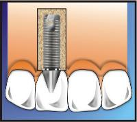 Dental Implant Process Complete