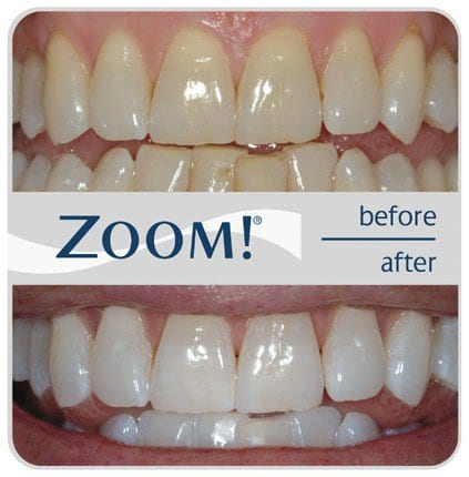 Zoom Teeth Whitening Before & After